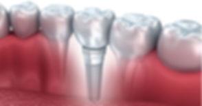 implantologia-dentale-implantologo-roma.