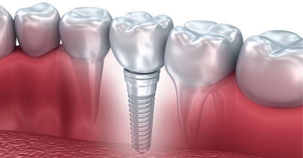 implantologia-dentale-ostia