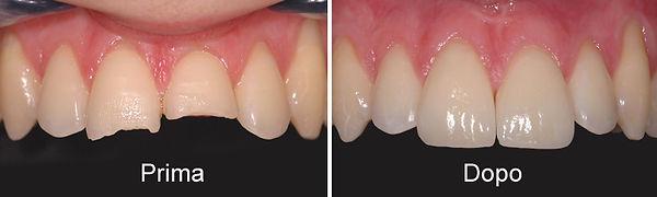 faccette-dentali-torino-02.jpg