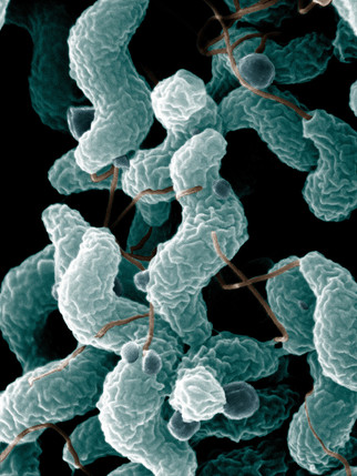 Increase In Local Campylobacter Cases (bacterial gastroenteritis)