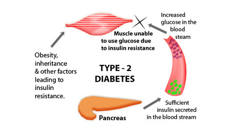 Research boost for type 2 diabetes