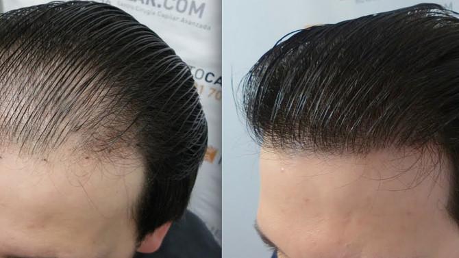 Masking Up or Managing Thinning Hair