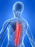 Highlighted Spine Image