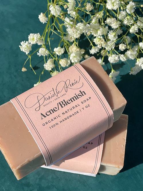 Acne/Blemish Organic Soap