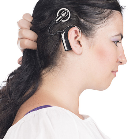 Are Cochlear Implants For Me?