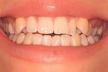 Crooked teeth before secret smile braces