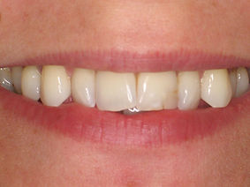 Crooked teeth, old stained filling