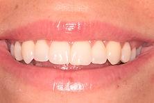 Beautiful smile after secret smile braces