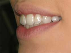 Post-Invisalign-Lateral.jpg