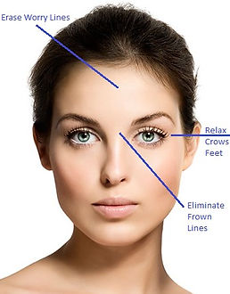 Botox areas 3.jpg