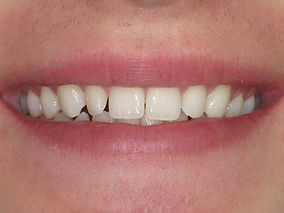 small twisted tooth