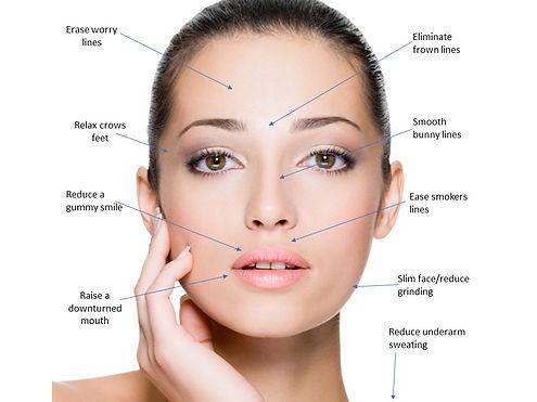 Ridge Aesthetics Botox Wrinkle Reduction Treatment Areas