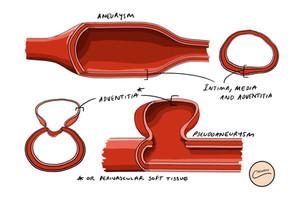 Aneurysm vs Pseudoaneurysm