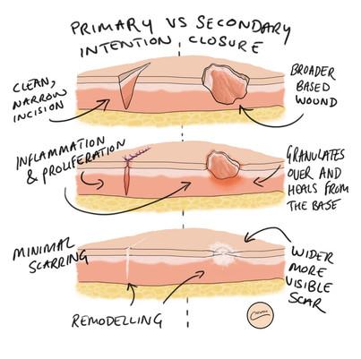 Primary vs Secondary intention closure