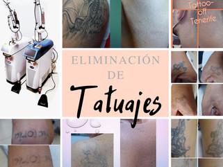 Cada vez más personas deciden de eliminar sus tatuajes