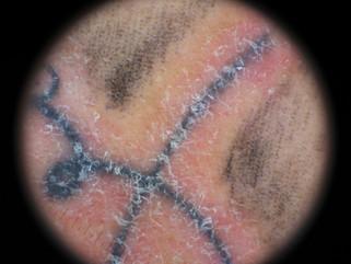 Reacciones adversas a tatuajes de tipo no-infecciosas