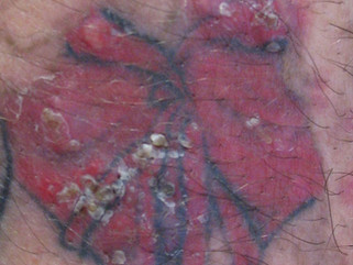 Cromo hexavalente en 95% de las tintas de tatuaje