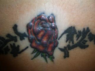 Novedades del congreso mundial de Dermatología de Milano: Caso de pseudolinfoma en un tatuaje