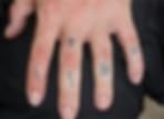 Tatuajes en los dedos: antes del tratamiento