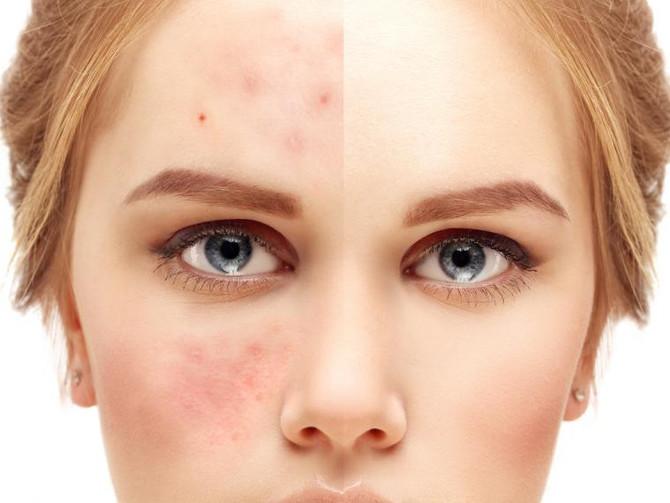 Más cerca de la vacuna contra el acné