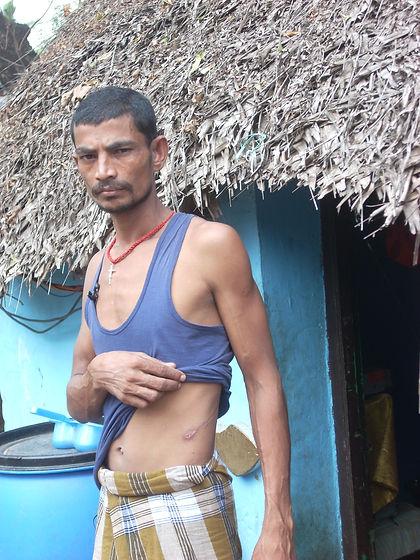 India Kidney 'donor'.JPG