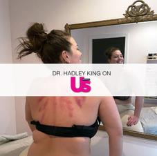 Ashley Graham's Body Treatment Leaves Intense Bruising