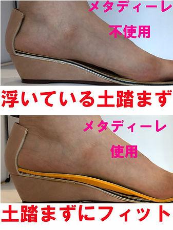 カットした靴にメタディーレ.jpg