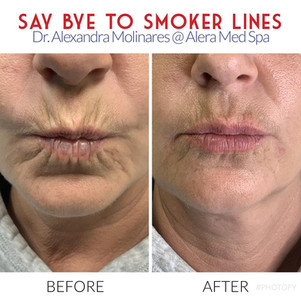 SMOKER LINES.jpg
