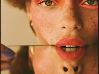 freckles jako hot trend
