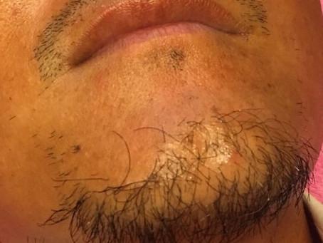 ヒゲ脱毛の結果。
