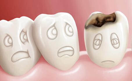 歯医者さんに行ってきた。