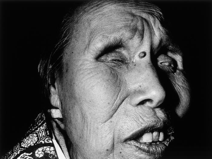 Blind female practitioner