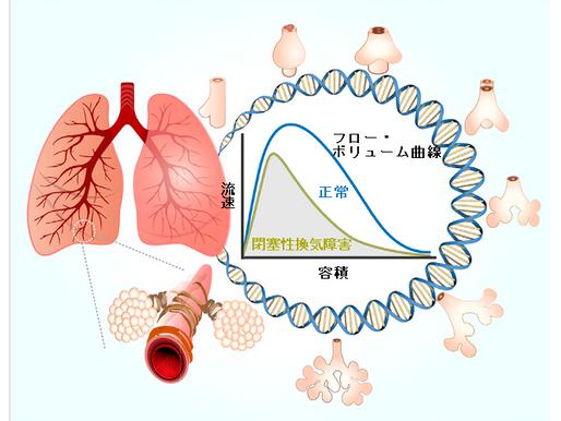 No.110 COPDの発症には肺の発達、成長が関係する