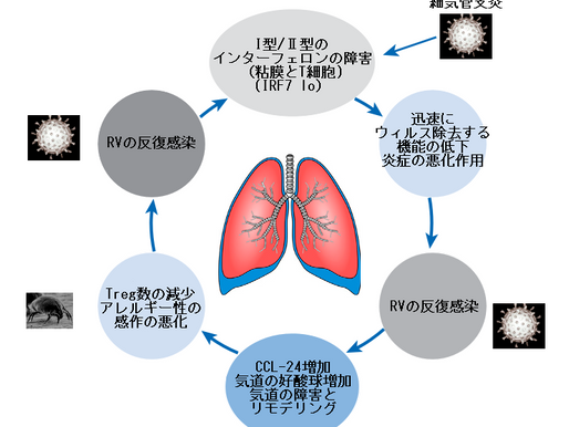 No.118 ウィルス感染で悪化する喘息