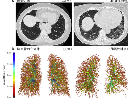 No.171 肺の血管分布から見た間質性肺炎の新報告