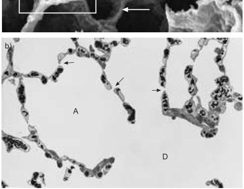 No.170 新型コロナウィルスに感染した肺胞構造の超微細構造の変化