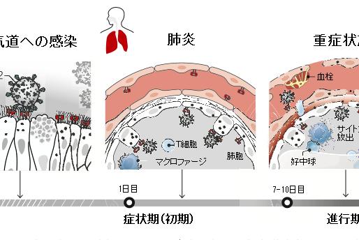No.94 新型コロナウィルス感染症はどのような機序で重症化するか