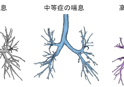 No.77 重症の喘息では胸部CTで観察される気道の数が減少する