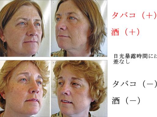 No.25 タバコが皮膚の老化に与える影響