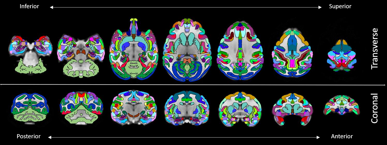 Macaque Brain Atlas