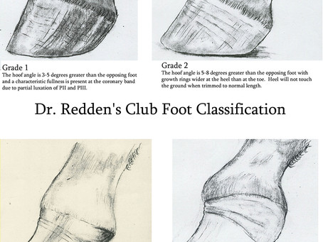 How To Treat Club Feet And Closely Related Deep Flexor Contraction