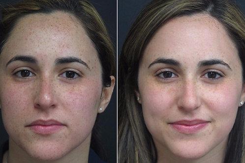One Medium (1) IPL Treatment (Sun Spots, veins, rosacea, skin rejuvenation)