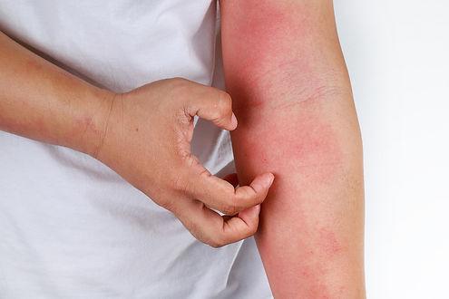 Allergic-rash_SH_1061073509.jpg