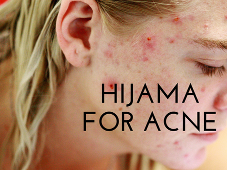 Hijama for acne
