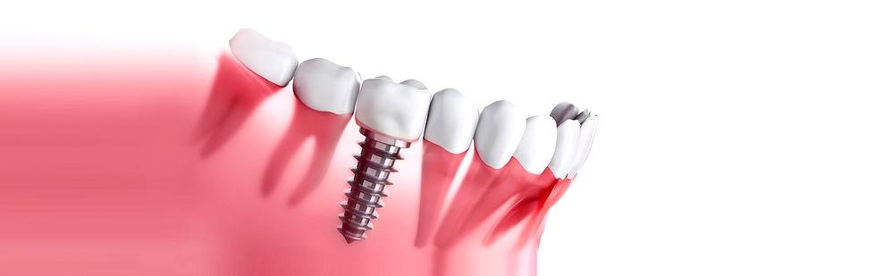 LaMesa-Dental-I22mplants_edited.jpg