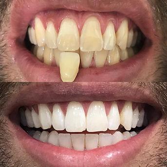 clareamento-dental-moreti.jpeg