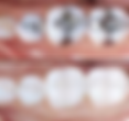 Bentleigh Dentists fillings