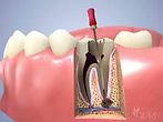 Bentleigh Dentists - Root Canal Therapy