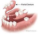 Benleigh Dentists - Partial dentures