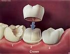Bentleigh Dentists - Crown and Bridge